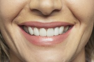 Gum grafting in Florham Park creates beautiful smiles.