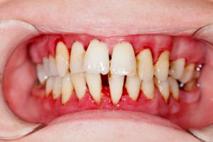 A person with periodontitis.